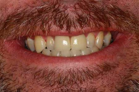 Dental Crowns For Misshapen Teeth