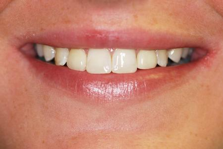 Veneers and Cosmetic Bonding
