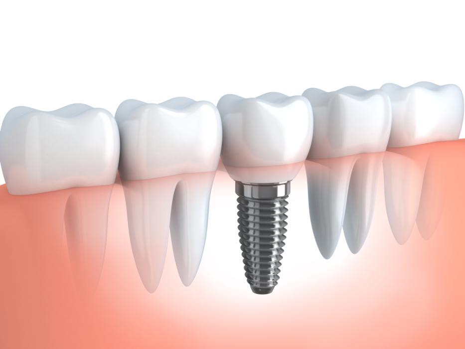 Dental implants fayetteville ar