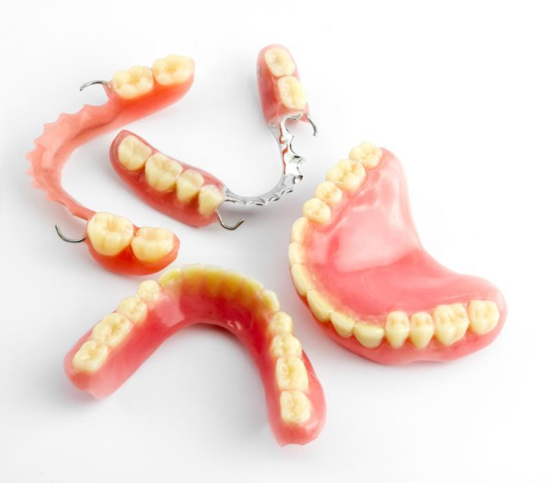 Model of full and partial dentures l Dentures in Fayetteville AR