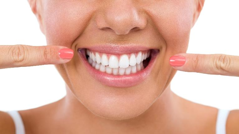 Big Smile | Reasons for Veneers 72703