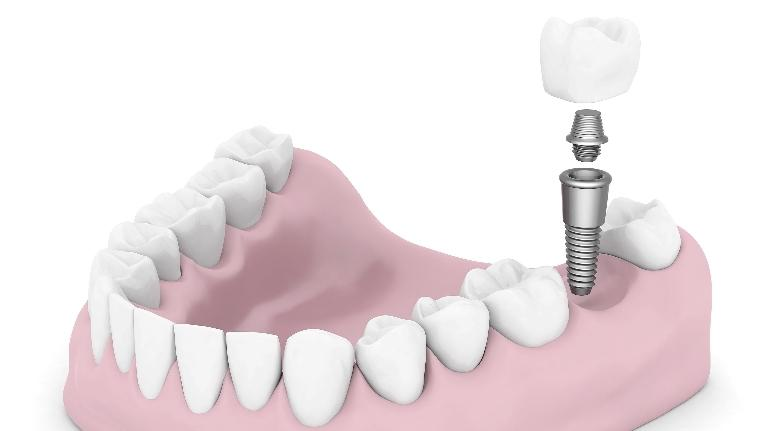 Dental Implants | Northwest Arkansas Family Dental