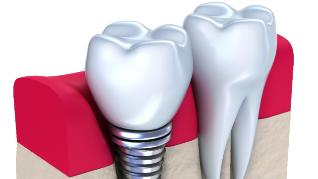 Dental Implant | Duration Of Dental Implant Appointment