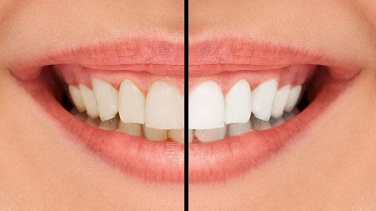 Professional Teeth Whitening | Fayetteville 72703