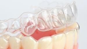 Close up of clear plastic aligner l Invisalign Fayetteville AR