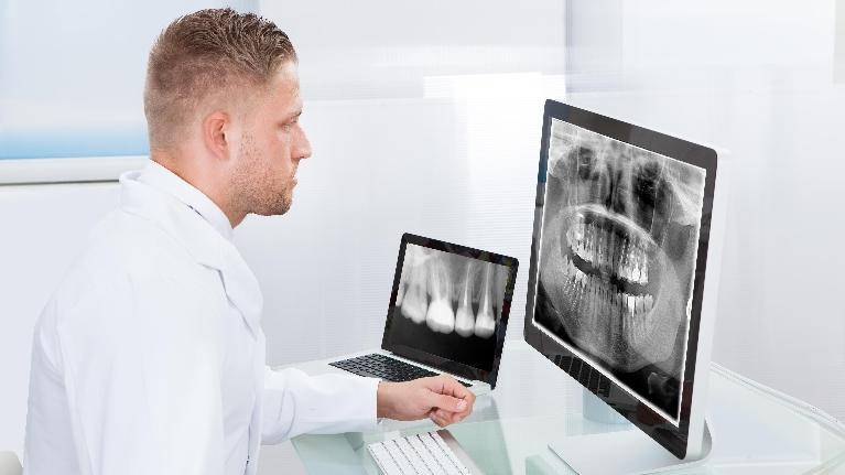 Dental X-Rays | Northwest Arkansas Family Dental