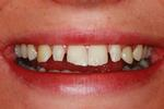 Veneers-and-Cosmetic-Bonding-Before-Image
