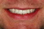 Dental-Implants-For-Missing-Teeth-After-Image