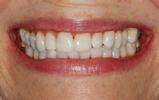 Deep-Bleaching-Whitening-After-Image
