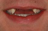 Dental-Implants-For-Missing-Teeth-Before-Image