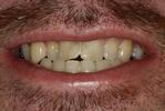 Dental-Crowns-For-Misshapen-Teeth-Before-Image
