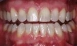 teeth after a Kor whitening treatment