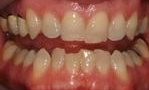 stained teeth before whitening