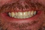 Dental-Crowns-For-Misshapen-Teeth-After-Image