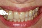 Deep-Bleaching-Whitening-Before-Image